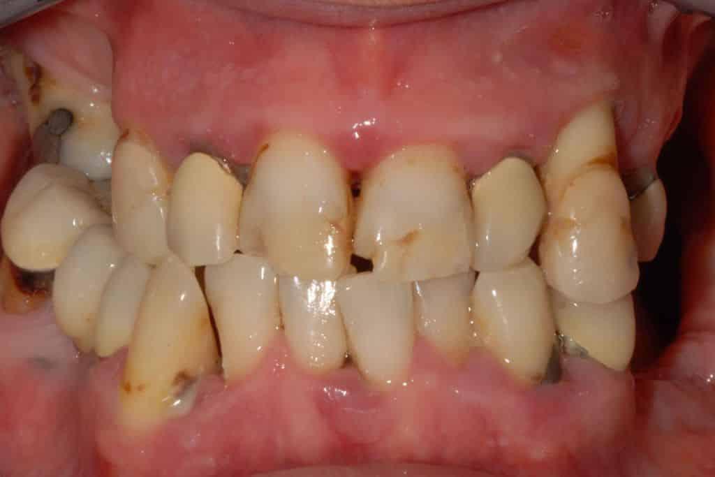 Parodontite grave