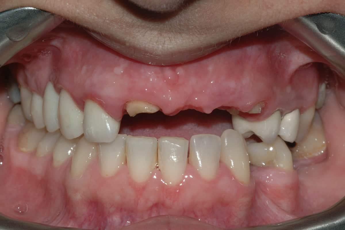 Carie sui denti anteriori. Nelle foto la situazione iniziale