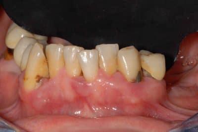 La situazione iniziale dell'arcata inferiore: parodontite