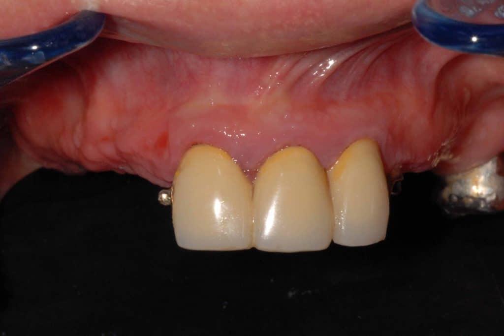 Implantologia dentale. La situazione iniziale dell'arcata superiore.