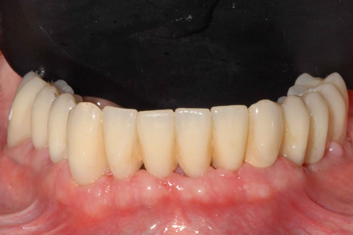 DSC 0363 - Implantologia dentale nell'arcata inferiore: alternativa all'All-on-4®
