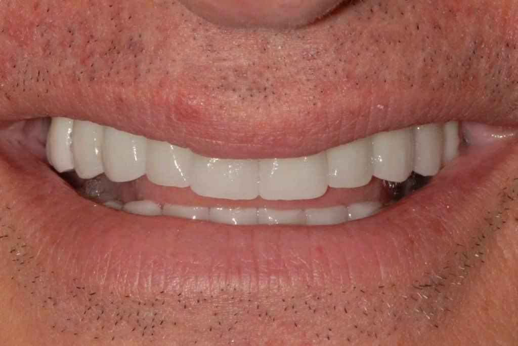 Implantologia dentale. Il sorriso del paziente con la riabilitazione definitiva dell'arcata superiore ed inferiore in zirconio-ceramica.