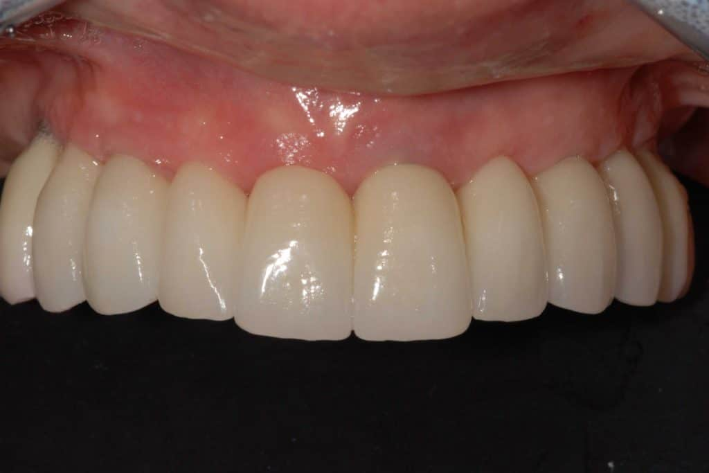 Implantologia dentale. La riabilitazione finale