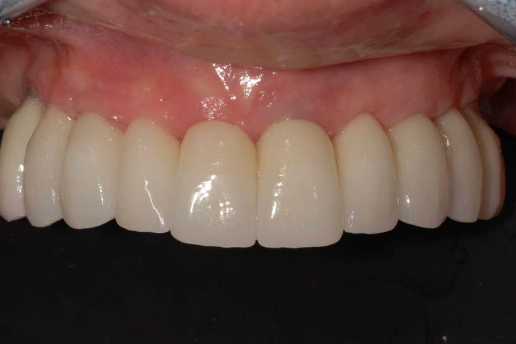 DSC 0703 1 1024x683 - Implantologia dentale su paziente con protesi mobile parziale