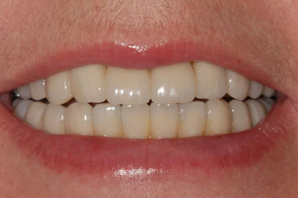 Implantologia dentale: sorriso riabilitazione definitiva