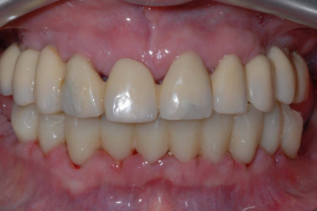 Implantologia dentale: protocollo OnlyOne