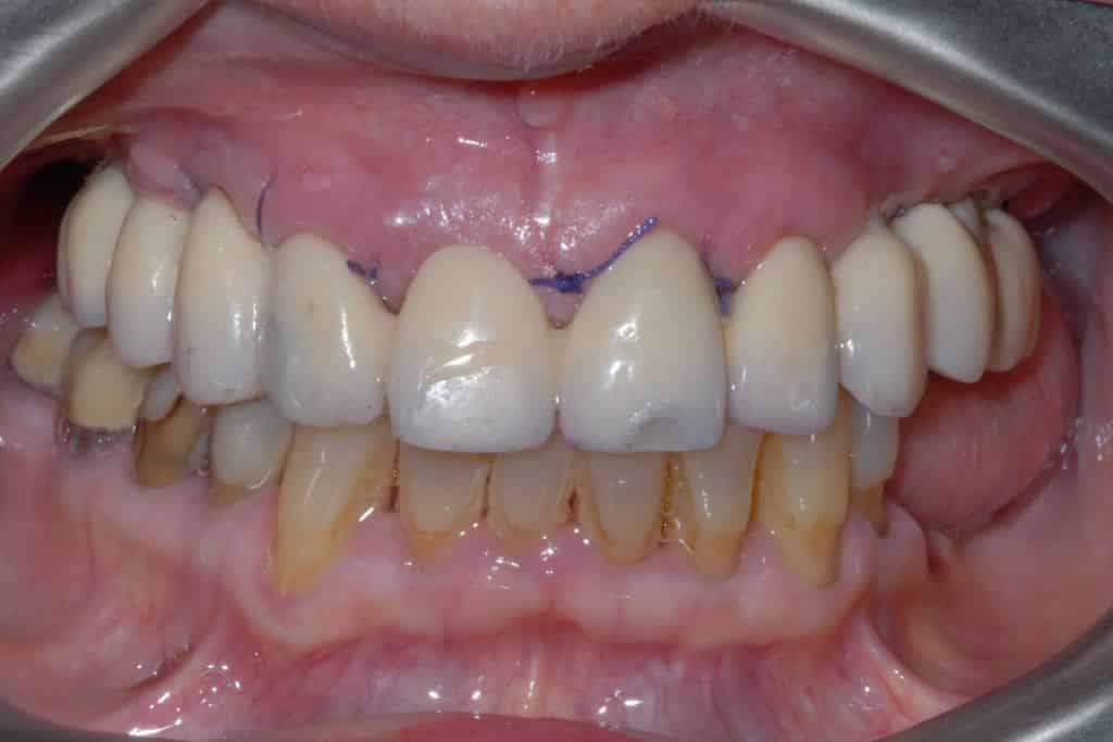 Implantologia dentale: Il provvisorio avvitato