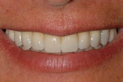 impianti dentali Il sorriso