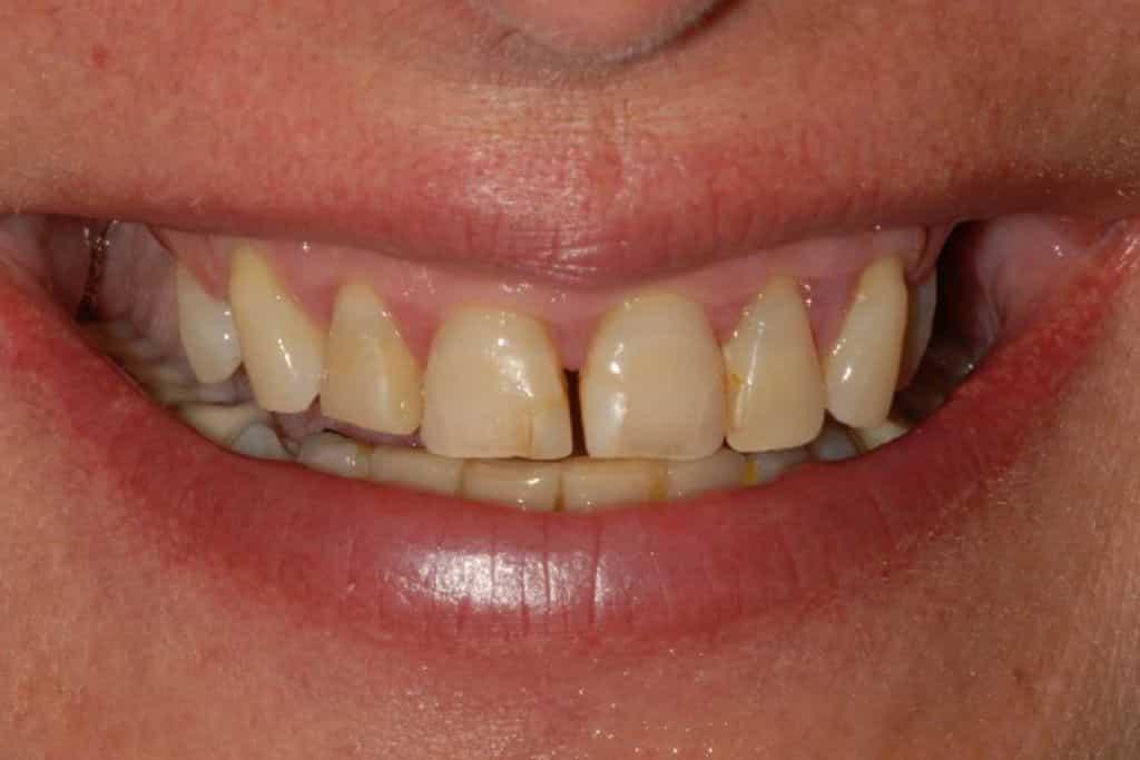 impianti dentali iniziale