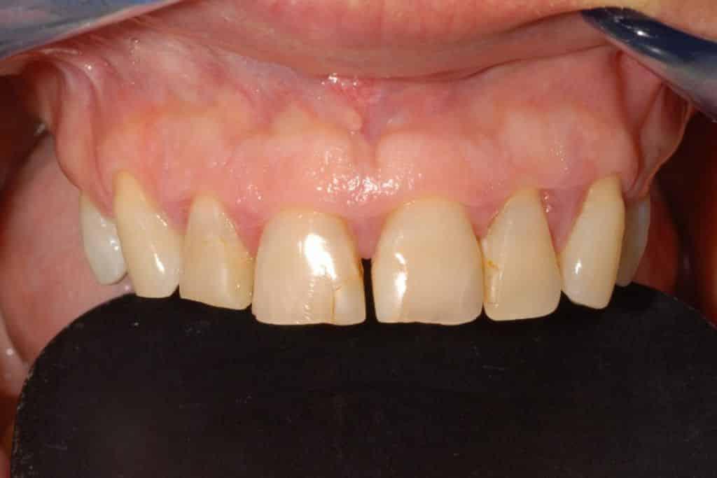 impianti dentali caso iniziale