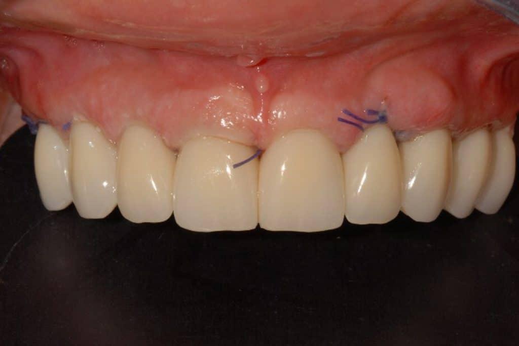 impianti dentali dopo 24 ore dall'intervento