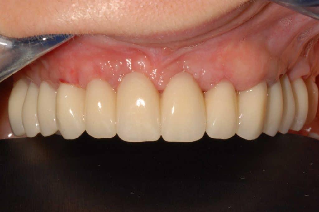 provvisorio avvitato sugli impianti dentali dopo 24 ore