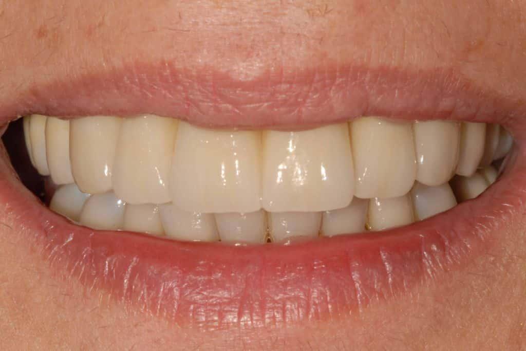 Il sorriso finale dopo la riabilitazione con impianti dentali