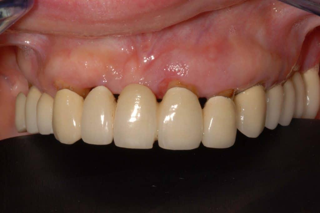 DSC 0155 1024x683 - Paziente con osteoporosi: implantologia e nuovo sorriso
