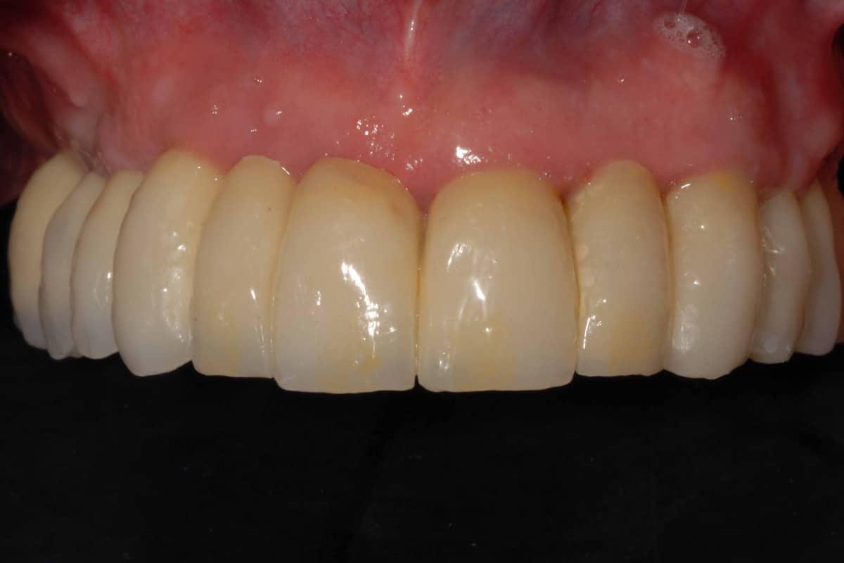 implantologia a carico immediato con parodontite: riabilitazione definitiva con impianti dentali dell'arcata superiore.