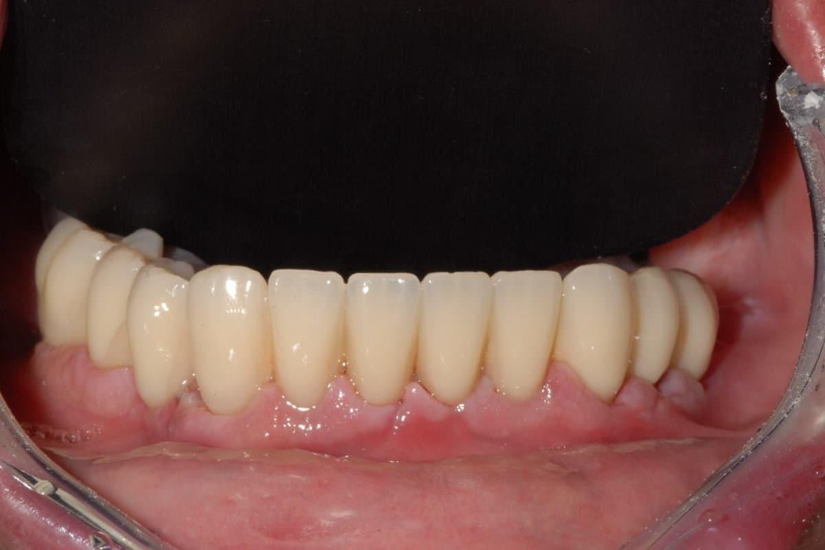 Emergenza dei denti avvitati sugli impianti dalle gengive
