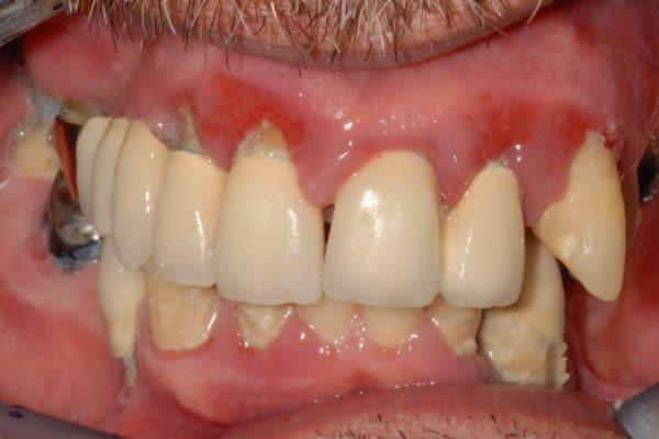 implantologia a carico immediato con parodontite: situazione iniziale