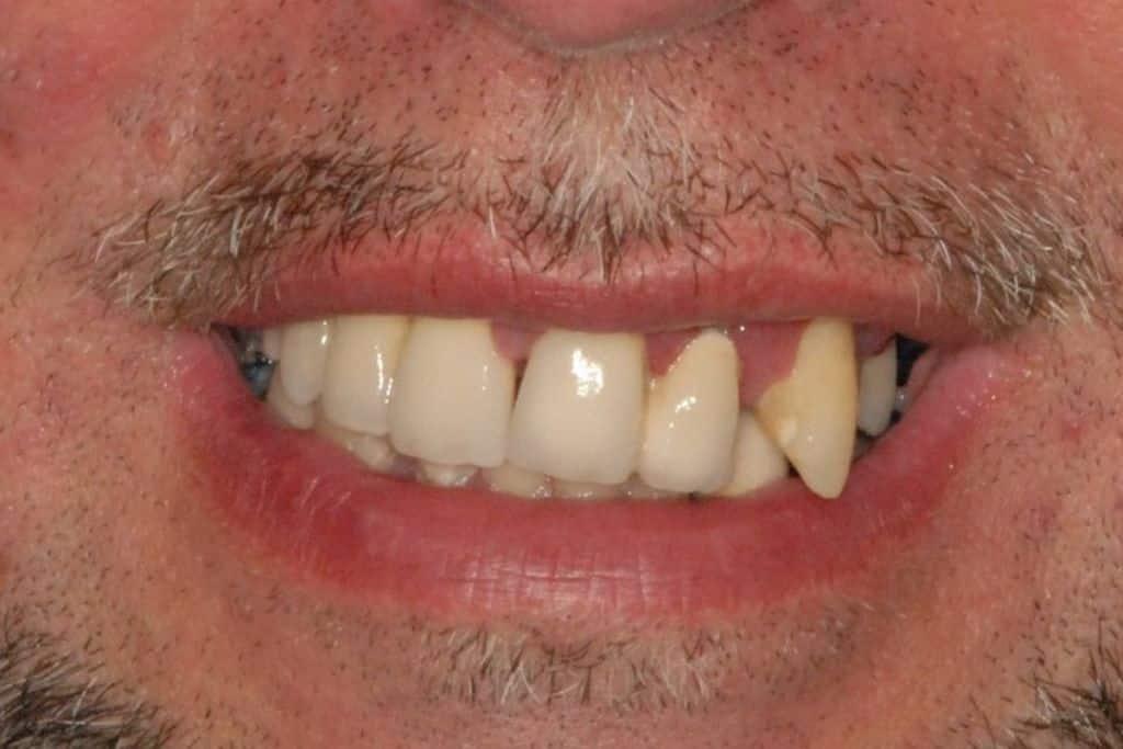 implantologia a carico immediato con parodontite: sorriso iniziale