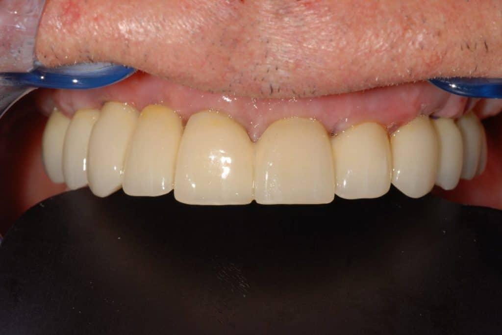 Implantologia a carico immediato parodontite e carie dopo