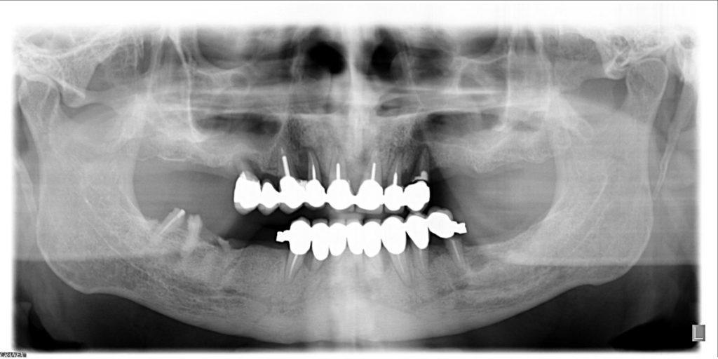 Implantologia a carico immediato parodontite e carie la panoramica
