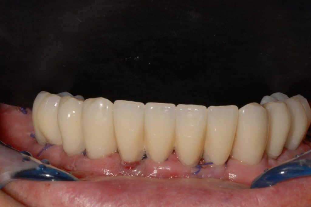 Implantologia a carico immediato parodontite e carie il provvisorio a 24 ore