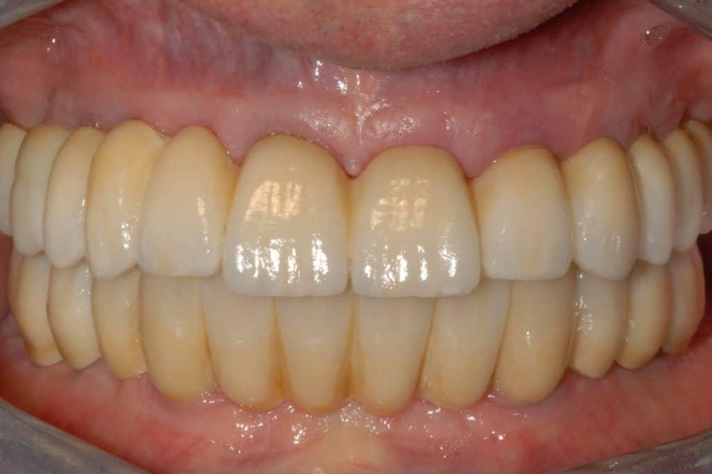 Implantologia a carico immediato parodontite e carie la riabilitazione finale