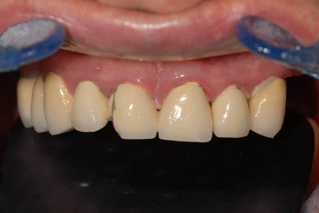 Implantologia a carico immediato parodontite e carie prima