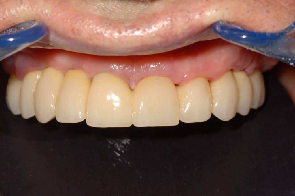 Implantologia a carico immediato parodontite e carie il provvisorio