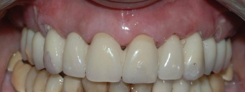 Parodontite: il provvisorio a 24 ore