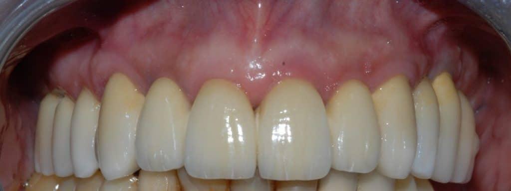 Parodontite: riabilitazione definitiva