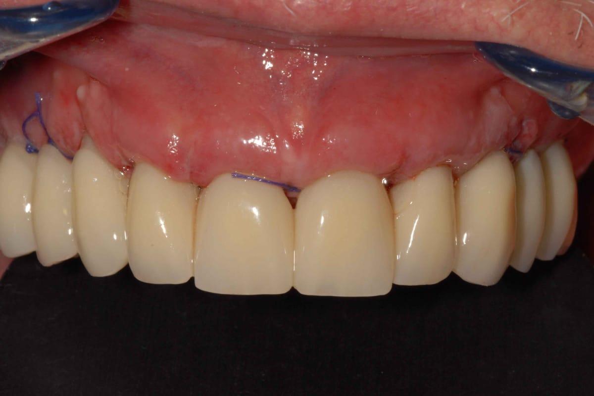Il provvisorio a 24 ore dall'intervento di implantologia dentale.