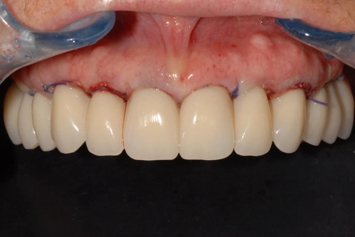 implantologia impianti dentali dopo 24 ore