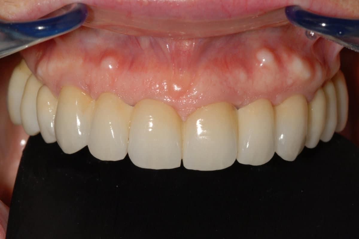 implantologia zirconio ceramica arcata superiore