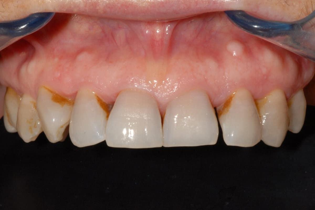 implantologia parodontite di grado avanzato