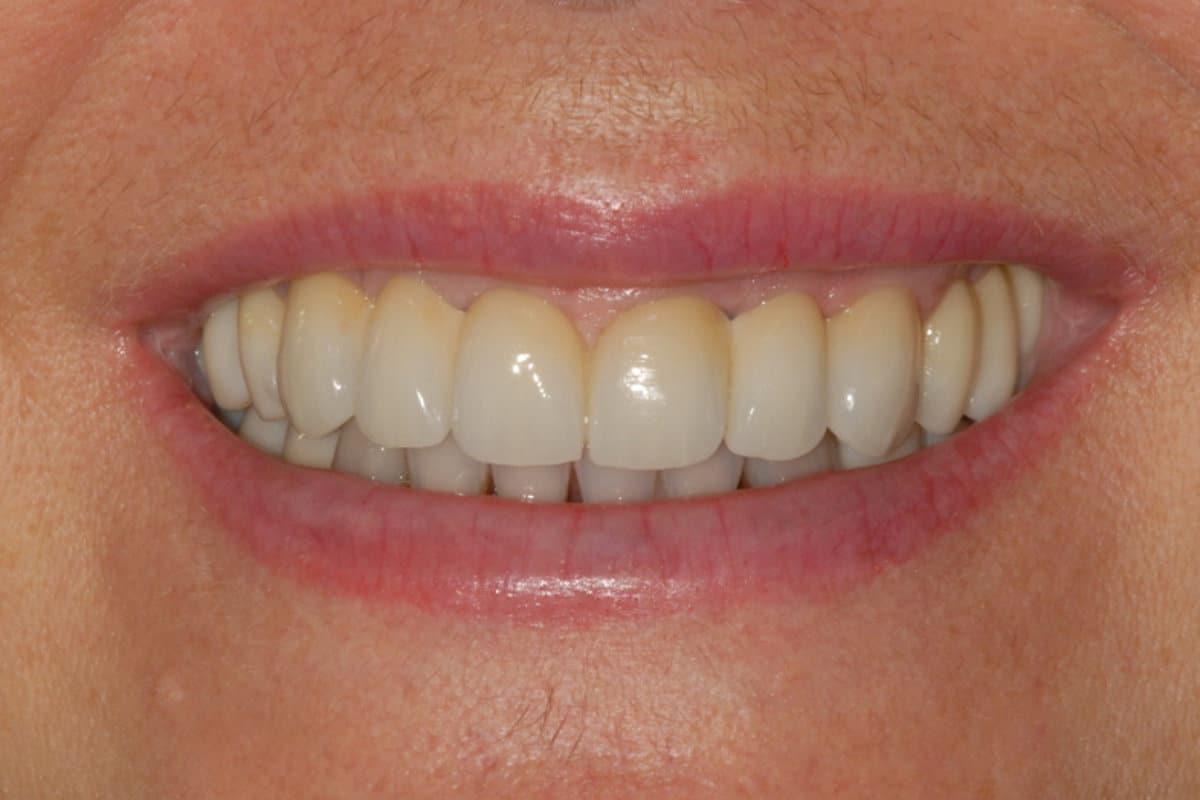 implantologia il sorriso