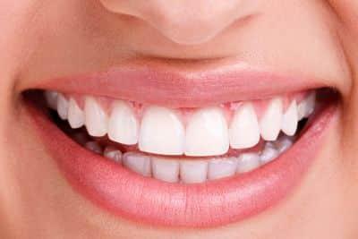 cover parodontite e vecchi impianti