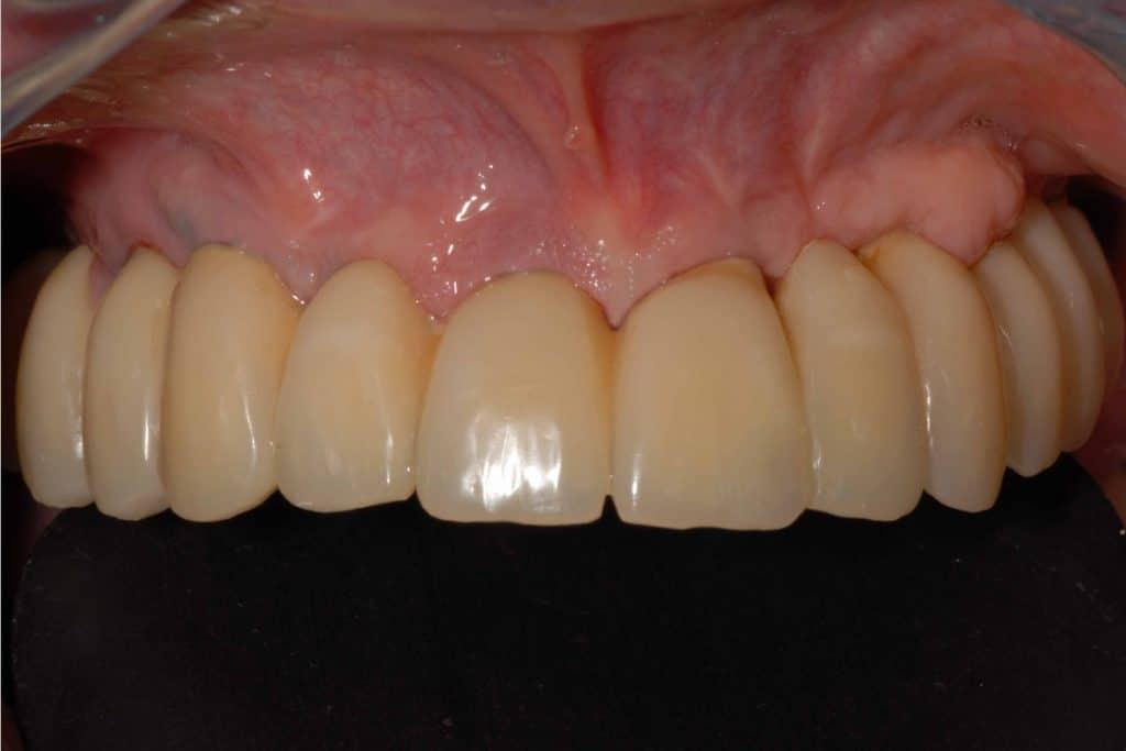Parodontite. La riabilitazione definitiva a 3 anni dall'intervento.