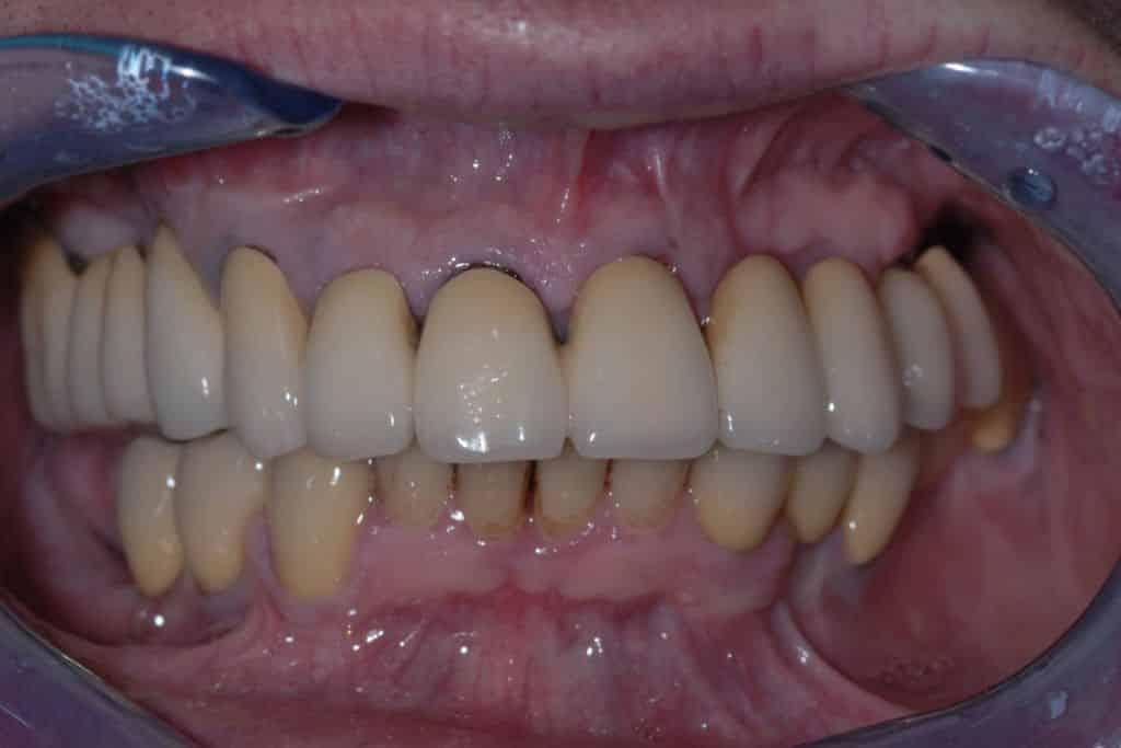 parodontite e perimplantite: situazione iniziale.