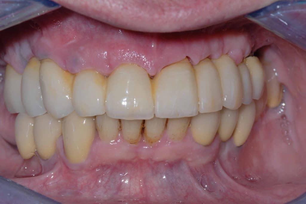 Parodontite. Il provvisorio dopo circa 8 giorni dall'intervento.