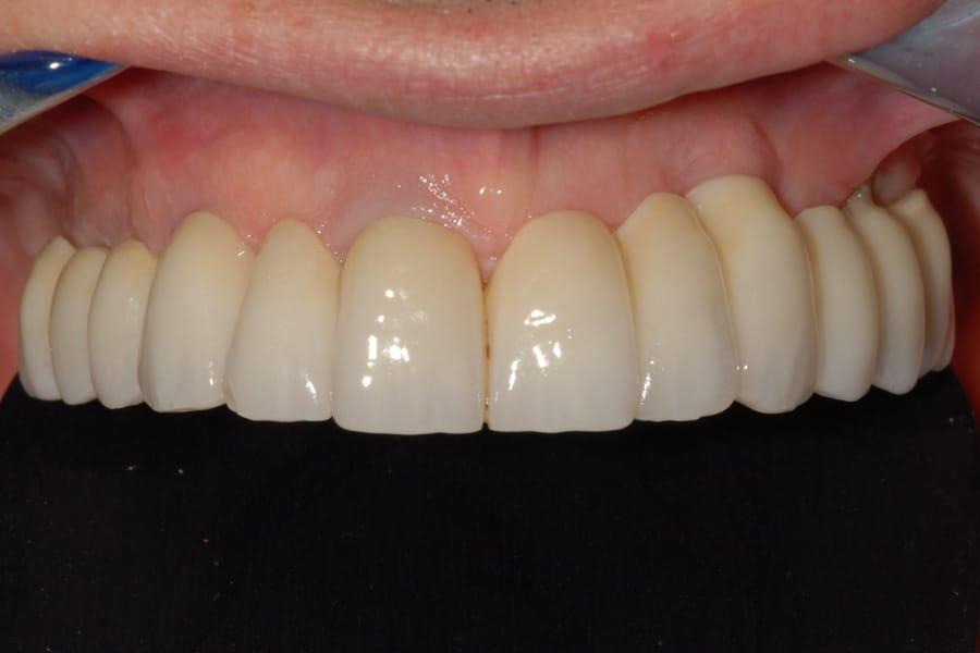 denti zirconio
