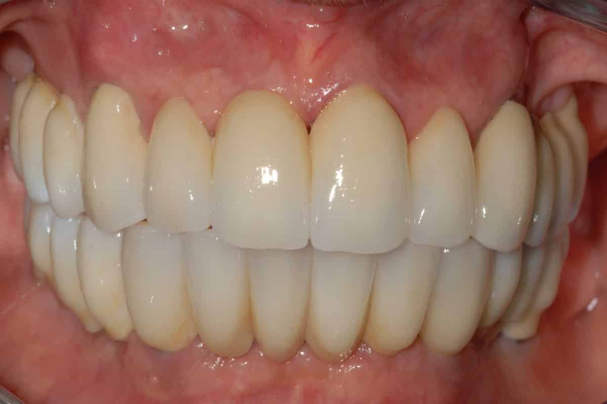 denti zirconio ceramica