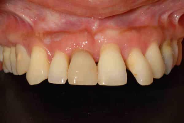parodontite avanzata implantologia a carico immediato