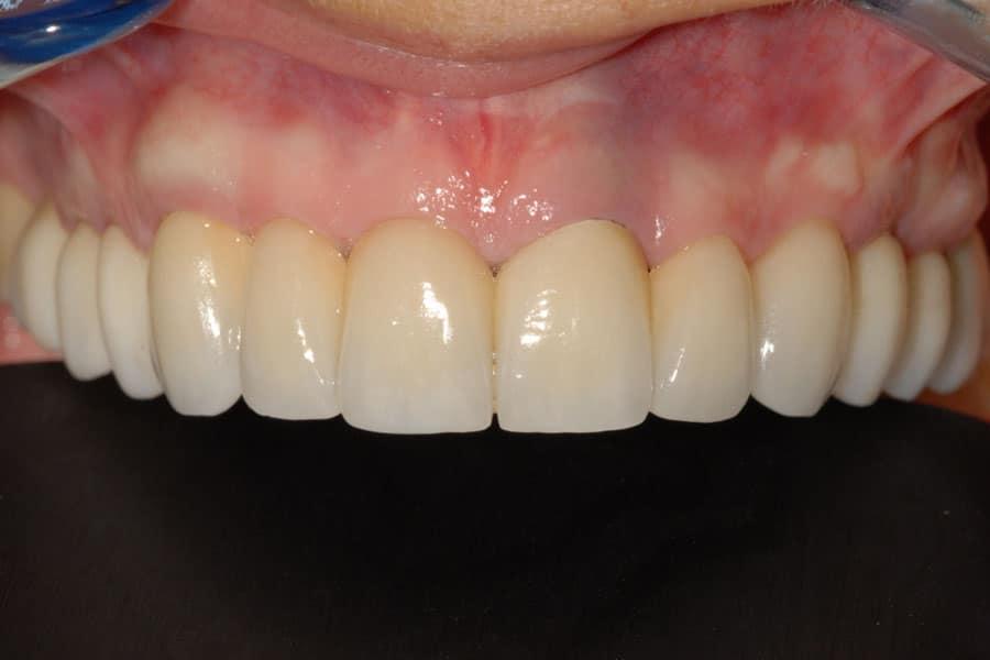 implantologia a carico immediato gengiva naturale