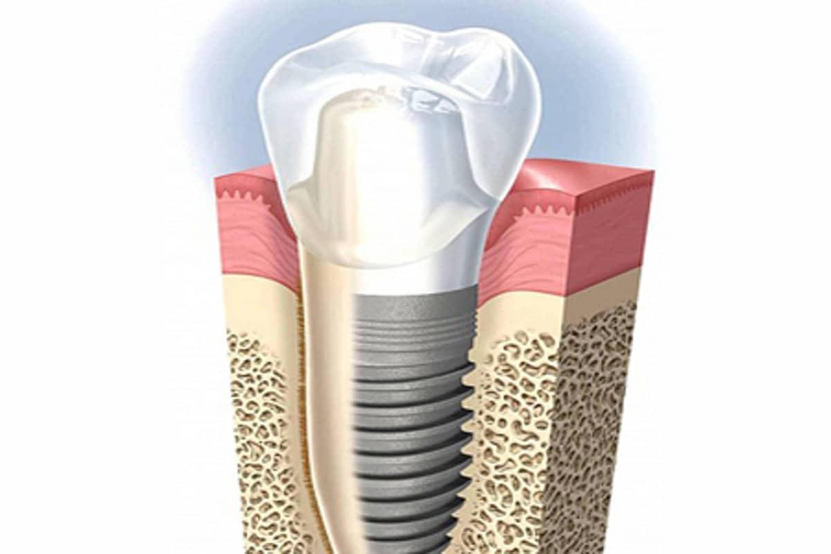 impianto dentale con corona1 - Perdita impianto dentale che fare