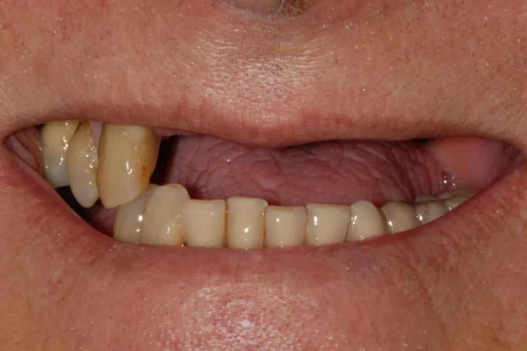 Parodontite. Il sorriso iniziale