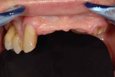 Parodontite. Arcata superiore senza protesi mobile: situazione iniziale.