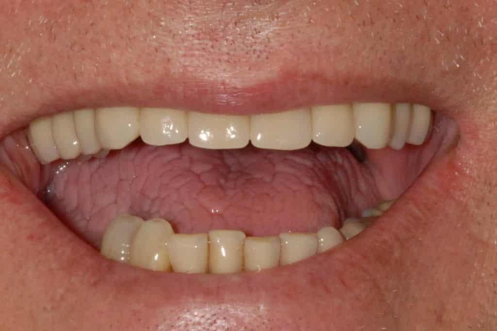 Parodontite. Il sorriso dopo provvisorio sull'arcata superiore a 24 ore dall'intervento.