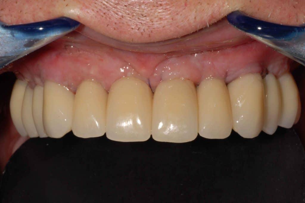 Parodontite e implantologia. Provvisorio dopo 24 ore