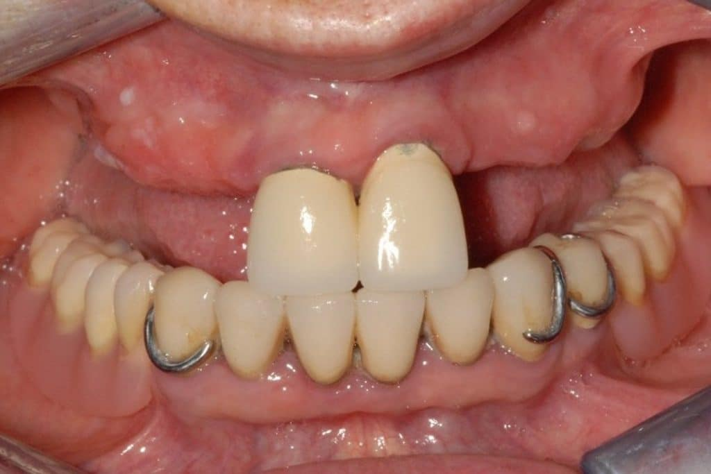 implantologia dentale, caso iniziale