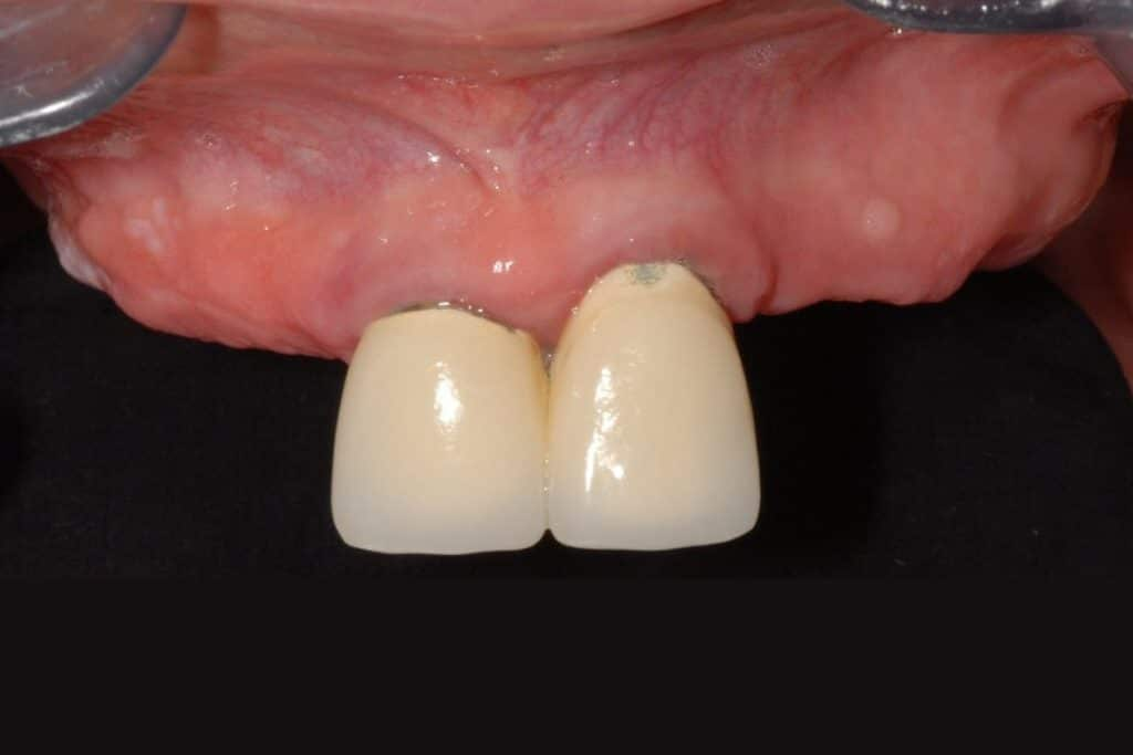 implantologia dentale prima
